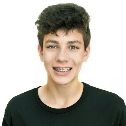 Orthodontie pour adolescents a St-Jerome - Dr Pierre Messier Orthodontiste - (snipet)